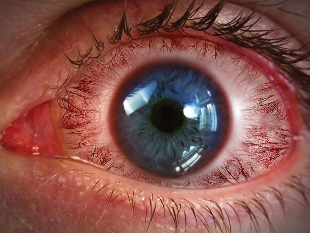 Blepharitis - red eye